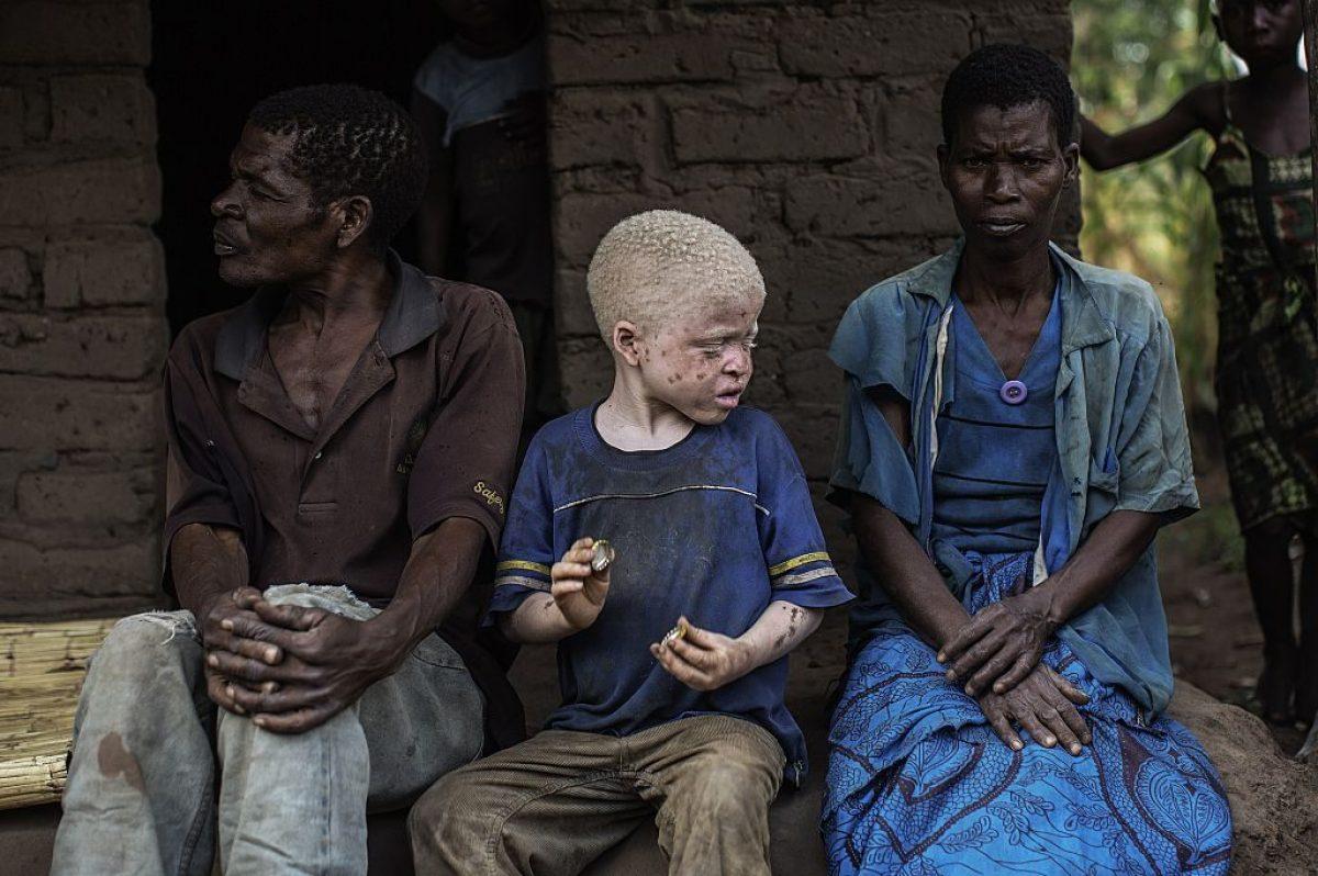 Persone Con Albinismo Ancora Più Vulnerabili Durante La Pandemia Da Covid-19