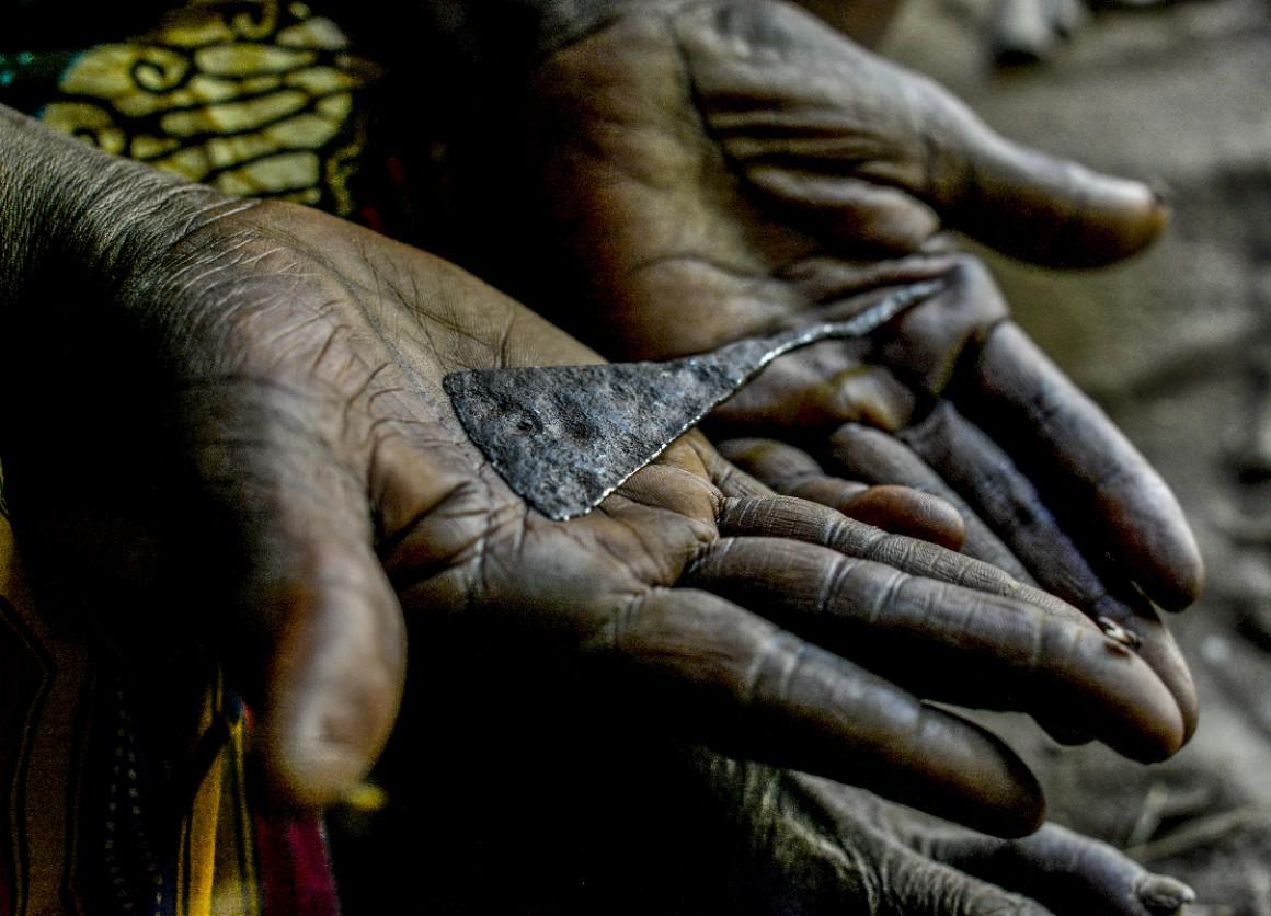 Fgm, Una Vigliaccheria E Un Degrado Per Gli Uomini E Per Tutta L'umanità